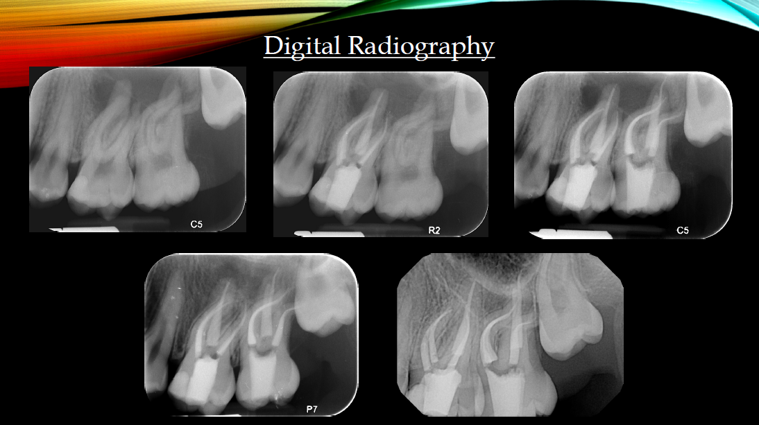 Aspen Endo - Digital Radiography